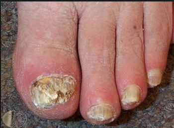 Know About Nail Fungus Onychomycosis