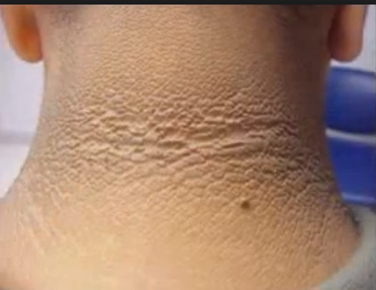 Acanthosis Nigricans And Its Treatment